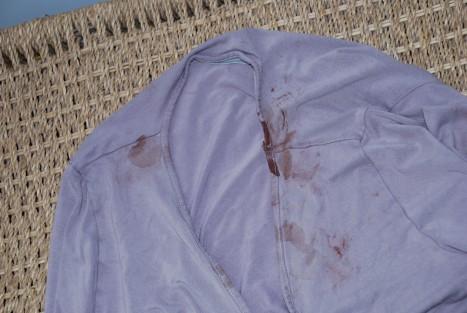bloody-shirt